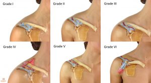 AC Joint Grades I to VI