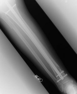 X-Ray of Broken Leg